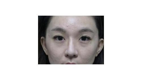 崩溃!!鼻重建再败入台求助 名医高义盛:肋软骨兼容性最好