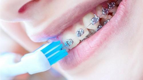 作為一個牙箍仔、牙箍妹,你需要一款GEVILAN便攜沖牙器